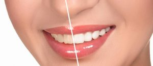 Step by Step Guide to Teeth Whitening