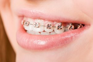 The Importance Of Dental Braces